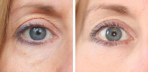 revito-eye-cream-before-after
