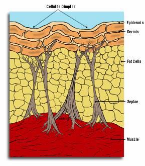 Cellulite Tissue Structure