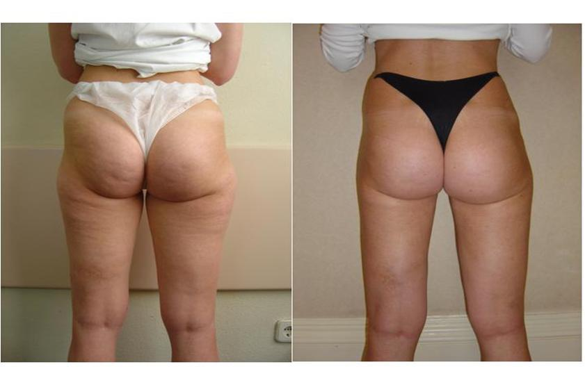 Before & After Effects of Dermology Cellulite Solution