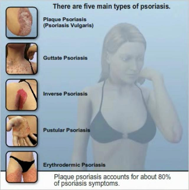 Psoriasis types