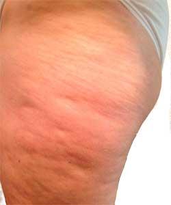 cellulite-legs