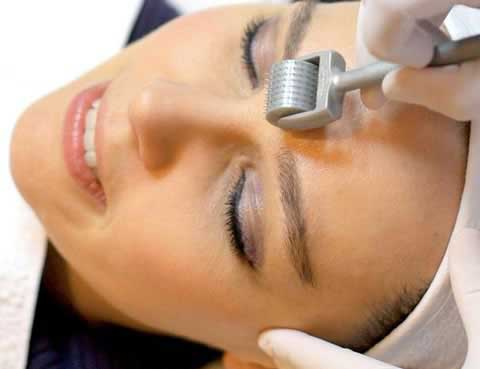 dermal-needling-process