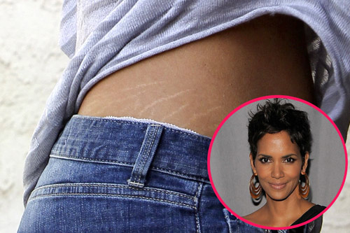 Halle-Berry-stretchmarks