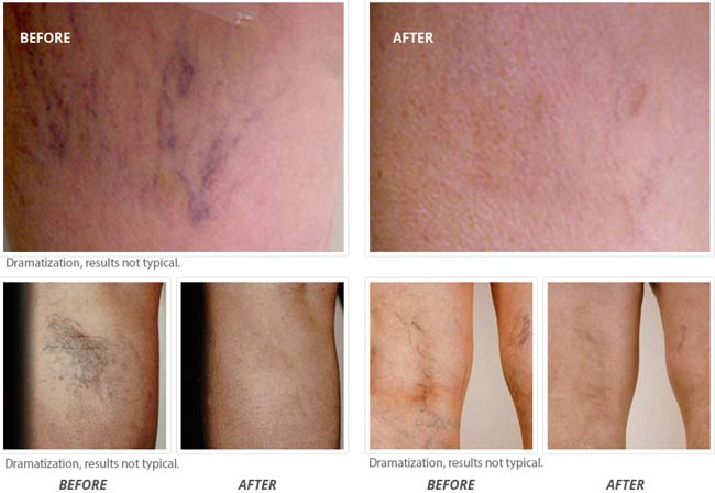 Venorex: Before After Pictures