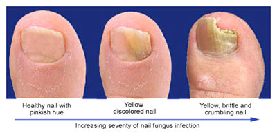 Toenail Fungus Stages