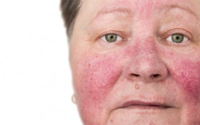 Rosacea Skincare guide: Products to avoid