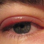 Blepharitis Symptoms - 2