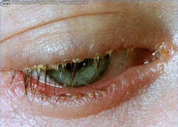 Blepharitis Symptoms - 3