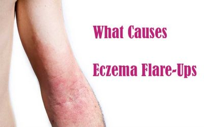 What Causes Eczema to Flare Up?