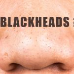 Black Heads & Clogged Pores