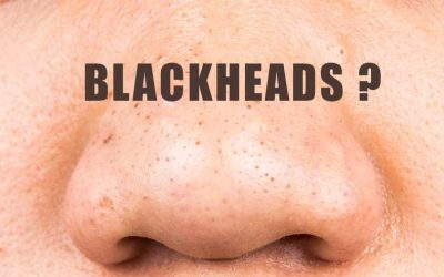 How To Get Rid Of Deep Blackheads and Clogged Pores?